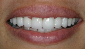 Close up smile done by Dr. Sharon Schindler