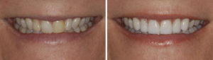 Before and after new smile